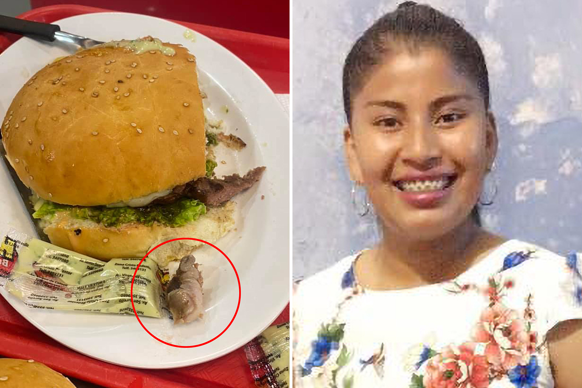 Bolivian fast-food customer Estefany Benitez was left shocked and disgusted after she allegedly bit into a burger and ended up chomping a rotting human finger.